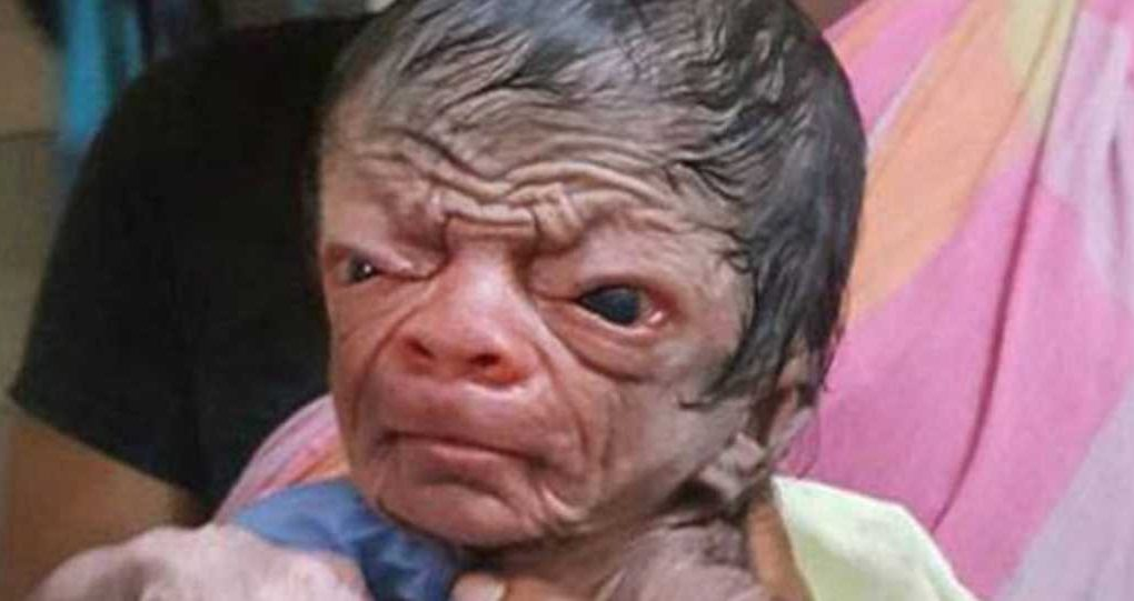 Image of a Baby with Progeria